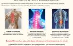 Что такое остеохондроз – виды, симптомы и лечение