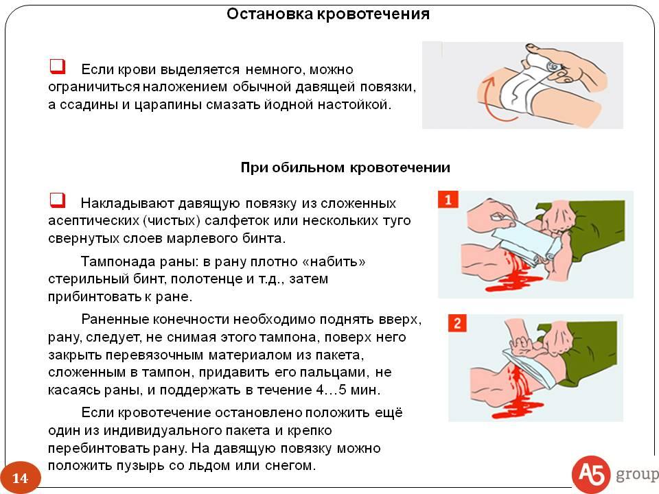 Как быстро остановить кровь при порезе